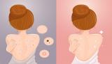 [Review] Top 5 xà phòng trị mụn lưng hiệu quả nên dùng nhất